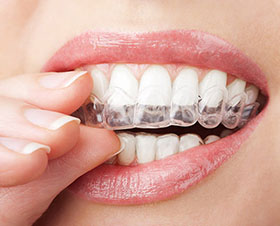 Flushing Alternative to Braces for Teens